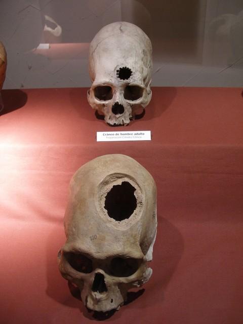 Các hình ảnh ví dụ về phẫu thuật não trong văn hóa Inca từ thế kỷ thứ 15 sau Công nguyên. (Thomas Quine / Wikimedia Commons)