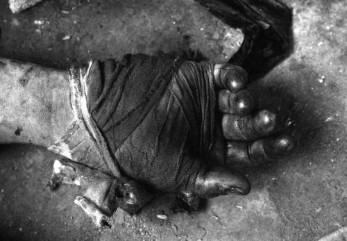 Bàn tay băng bó của một người lính bị thương trong giao tranh, tháng 6/1968. (AP/ The Atlantic)