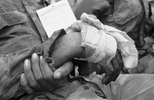 Một lính VNCH bị thương đang chờ di tản, tháng 8/1968. (AP/ The Atlantic)