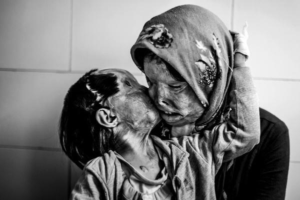Người mẹ nhận cái hôn yêu thương từ con gái 3 tuổi. Cả hai đều là nạn nhân của một vụ tạt axit do người chồng, người cha gây ra.