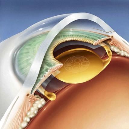 Hình ảnh minh họa Acrysof ReSTOR Lens (màu vàng) được cấy vào mắt người. Ảnh minh họa